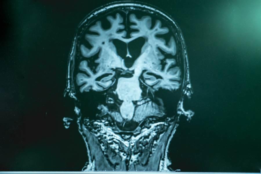 發病前就能發現!阿茲海默症新診斷法太令人驚訝。圖為阿茲海默症患者核磁共振影像示意圖。(圖/達志影像)