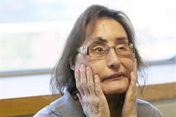 美國首起變臉手術案例 勇敢女先鋒康妮過世