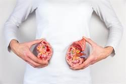 腎結石沒痛感比會痛的更危險!醫曝超可怕後果