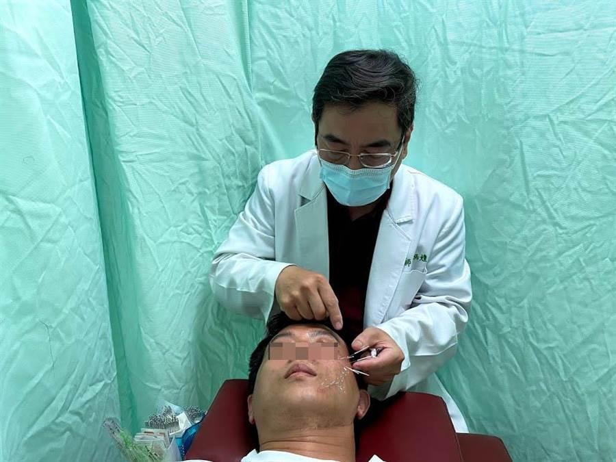 台南市立醫院指出,針灸有助診治周邊型顏面神經麻痺症狀。(台南市立醫院提供/李宜杰台南傳真)