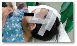 兒童遭車輾破頭顱 台大雲林分院成功救治