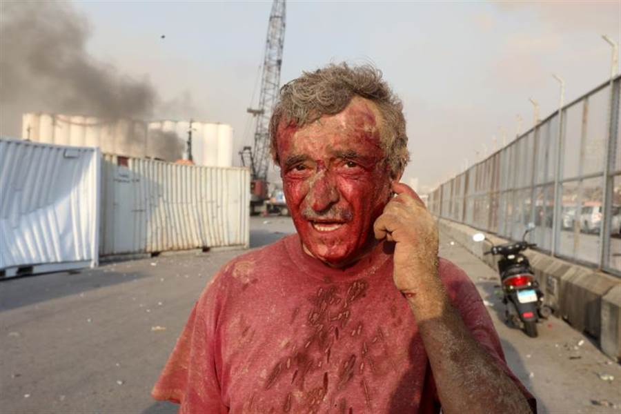 黎巴嫩局勢持續動盪,去年起陷入1990年內戰結束後的最大經濟危機,引爆連串大規模示威,迄今仍未平息。圖為大爆炸發生後,1名受傷的男子渾身是血。(路透)