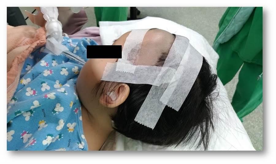 一名1歲大女嬰遭汽車前輪壓破頭骨,送到台大雲林分院時全身抽搐,經兒童神經外科、小兒神經科醫師合力搶救回一命,2個月後頭皮卻腫一包,還會隨脈搏跳動,證實為萬分之一發生率的「成長性顱骨骨折」。(台大雲林分院提供)