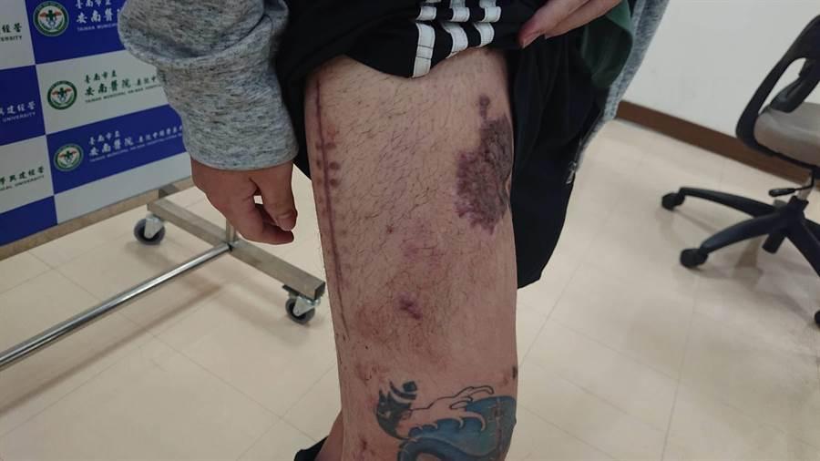 鄭男的右腳因手術留下多數傷疤。(程炳璋攝)