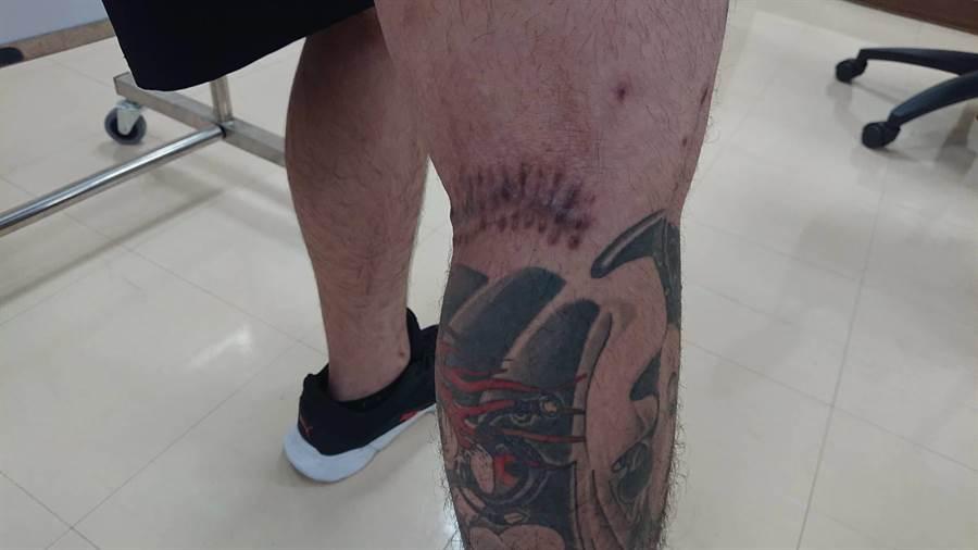 鄭男右腳後關節的手術傷疤明顯。(程炳璋攝)