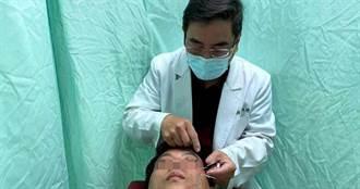 66歲女臉歪嘴斜急就醫  針灸治療幫助「定位」