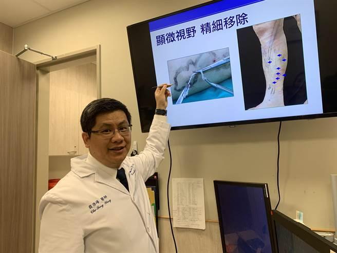 中國醫藥大學新竹附設醫院心臟外科主任翁啟峰醫師,以主軸靜脈雷射燒灼封閉手術、微創勾除手術,解決患者靜脈曲張問題。(莊旻靜攝)