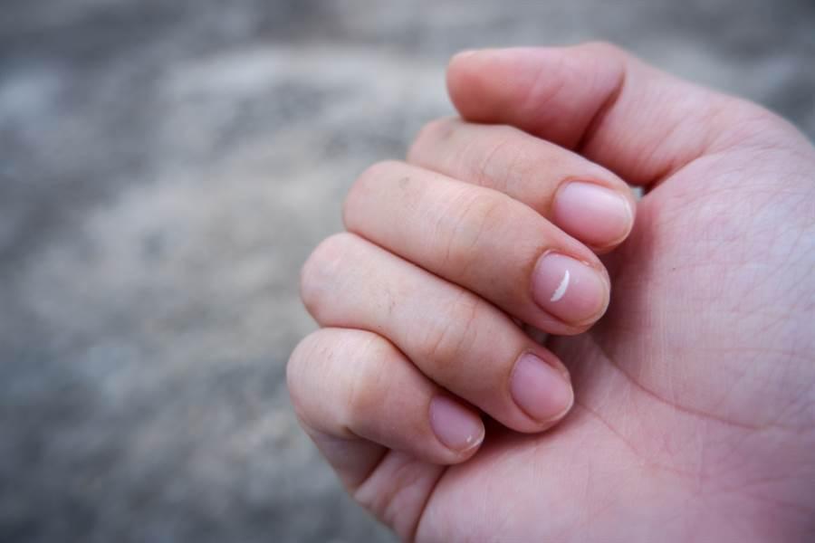 指甲可以看出一個人的健康狀況。(達志)
