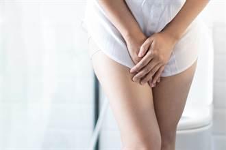 膀胱發炎都怪習慣差 大小便擦拭妳搞對沒?