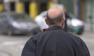 治療掉髮、禿頭秘密「藏在皮膚裡」:能喚醒毛囊幹細胞