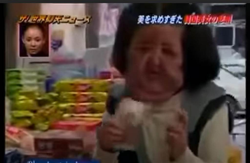 韓景慧臉部嚴重腫脹變形,整個人頭大身小不成比例。(取自日網)