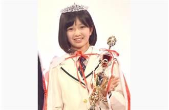 「日本第二可愛國中生」被曝驚人現況 15歲星二代俏臉面目全非