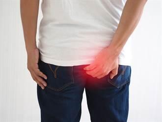 老翁肛門掛「25公分尾巴」長達10幾年 脫褲後醫見狀嚇傻