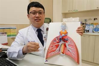 健檢發現肺結節 電腦定位加上微創手術切除