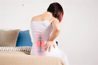 椎間盤突出 打噴嚏就背痛 簡單一招不復發