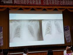 移轉性肺癌患者遭醫學中心勸退  台大雲林分院「冷凍微針治療」成功