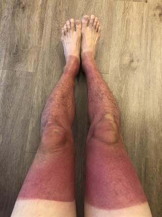 獨木舟戲水4小時 雙腿曬爆成紫芋