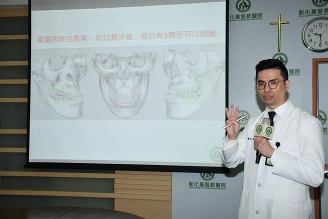 彰基口腔外科主任蘇竣揚提醒民眾,忽略咬合不正問題極可能使生活品質、營養攝取甚至健康狀況受到影響。(謝瓊雲攝)