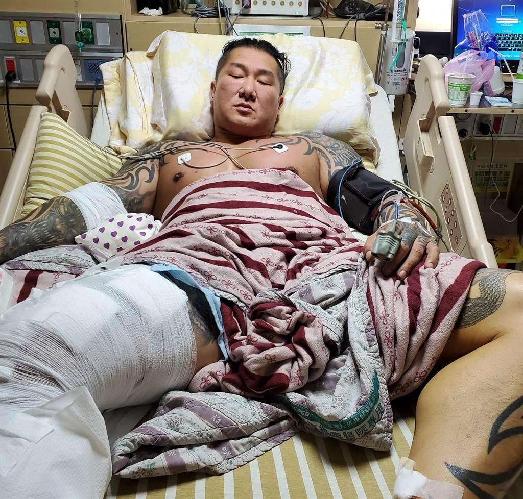 「館長」陳之漢遭槍擊後住院情況。(取自飆悍臉書)