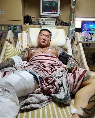 館長遭槍擊後首次直播 手術完現況照片曝光
