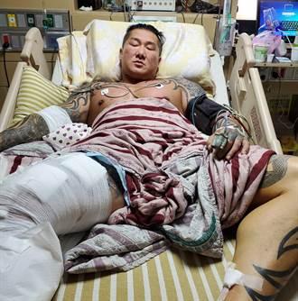 館長手術後親自首開直播 兇手朝我頭開槍 身上7彈孔 點名沈富雄:看一下我傷口