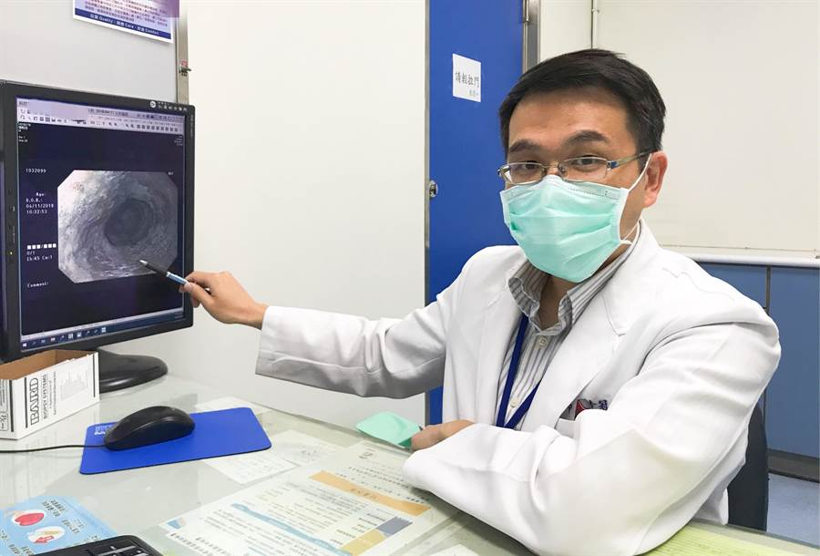 中年男毫無病徵 朋友邀約健檢竟找出早期食道癌 - 生活
