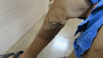 7旬婦飽受慢性骨髓炎之苦 彰醫高壓氧治療獲重生