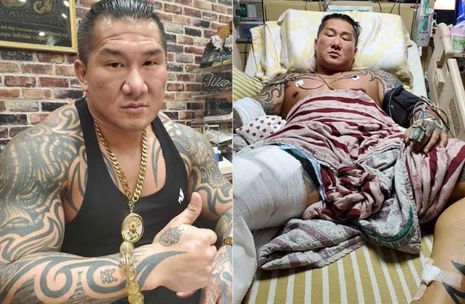 馆长中弹,復健科医师王思恒认为恢復之路有着两大关卡,不幸发生恐运动生涯全毁。(取材自飙悍脸书)
