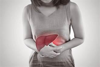 救脂肪肝有撇步 醫:發炎前快改變生活習慣