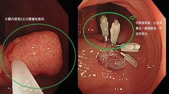 34歲無家族病史竟檢查出大腸癌 這些壞習慣種下禍根
