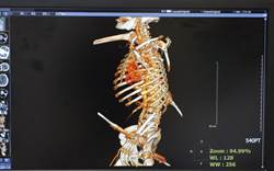 工人遭2鋼筋貫穿身體 治療時又發現肝癌復發