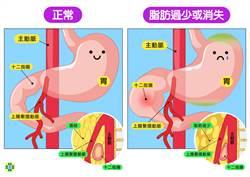 吃不胖 紙片少年罹上腸繫膜動脈症候群