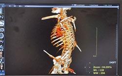 工人遭鋼筋穿胸 意外查出肝癌