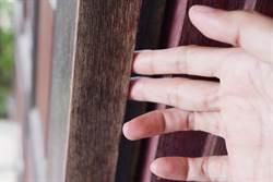 手指被門夾到腫成「圓球」網笑:跟湯姆貓同款手指