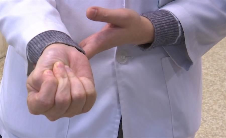 醫師郭志東表示,把姆指向內握拳,若拇指超出小指,就有可能罹患馬凡氏症候群。(圖截自新聞訪問影片)