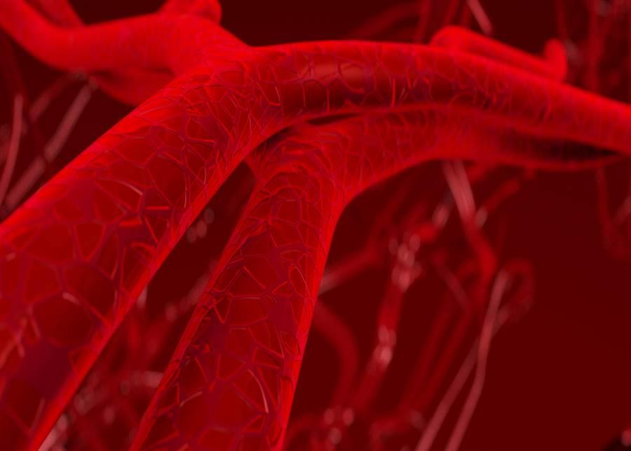 主動脈剝離原因曝光,醫PO手繪圖:血像噴泉一樣!(示意圖/達志影像)