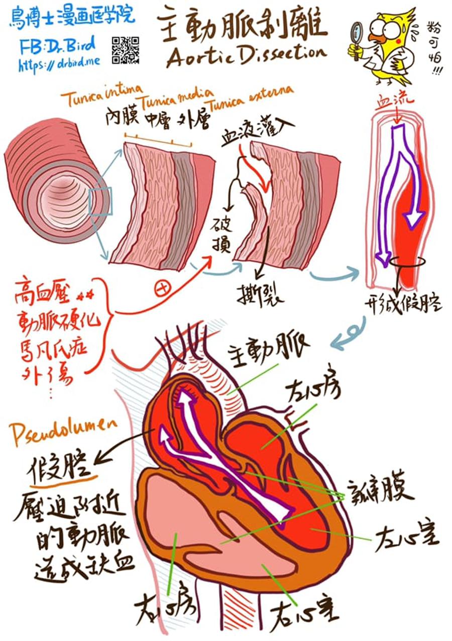 鳥博士手繪主動脈剝離圖。(圖/摘自Dr.Bird臉書)