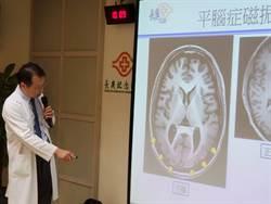 長庚陽明與跨國研究團隊合作 發現「平腦症」致病新基因