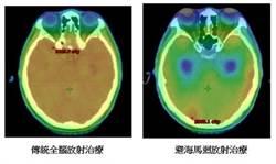 沒有記憶比沒命更可怕 腦癌患者選擇避開精準治療