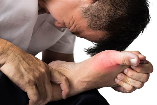 根據2010年健保資料庫的數據分析顯示,台灣的痛風盛行率為6.24%,相當於140萬人左右有程度不一的痛風困擾,男性又比女性多。(圖取自達志影像/示意圖非當事人)