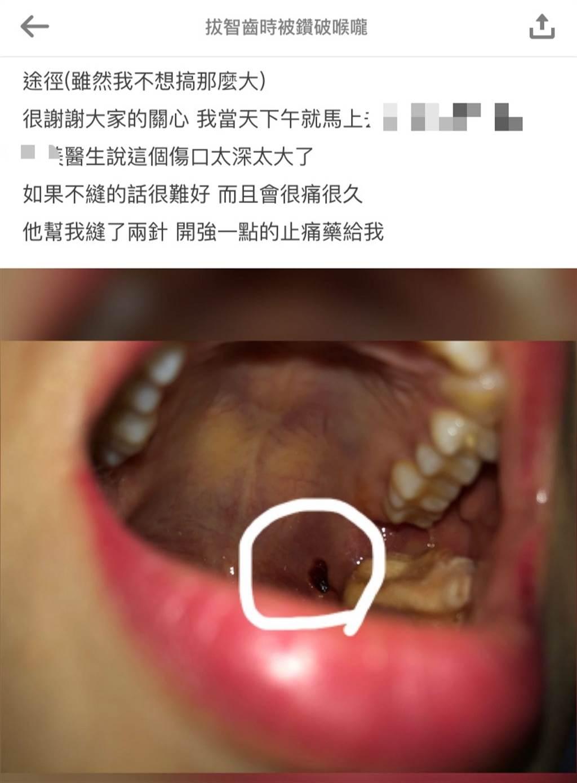 網友貼出自己喉嚨的傷口照。(圖擷取自Dcard)