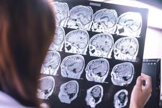 50歲後大腦開始萎縮 這3種習慣加速腦容量變小