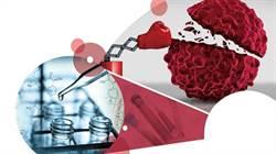 中胰臟癌最多活半年 NK細胞療法成新救星