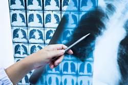 他每年照X光都沒發現肺癌 重症醫曝如何早期篩檢
