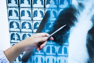 揪出最花錢的肺癌 胸部X光、電腦斷層與低劑量電腦斷層 該怎麼選?