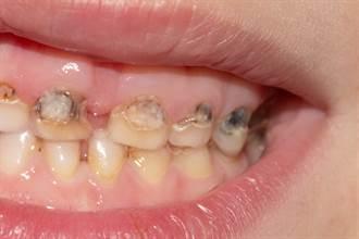 25歲女「不愛喝水」10幾顆牙蛀爛 醫揭超慘下場