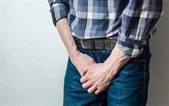 包皮過長導致異味噴發 醫建議5種情況「割」了再上