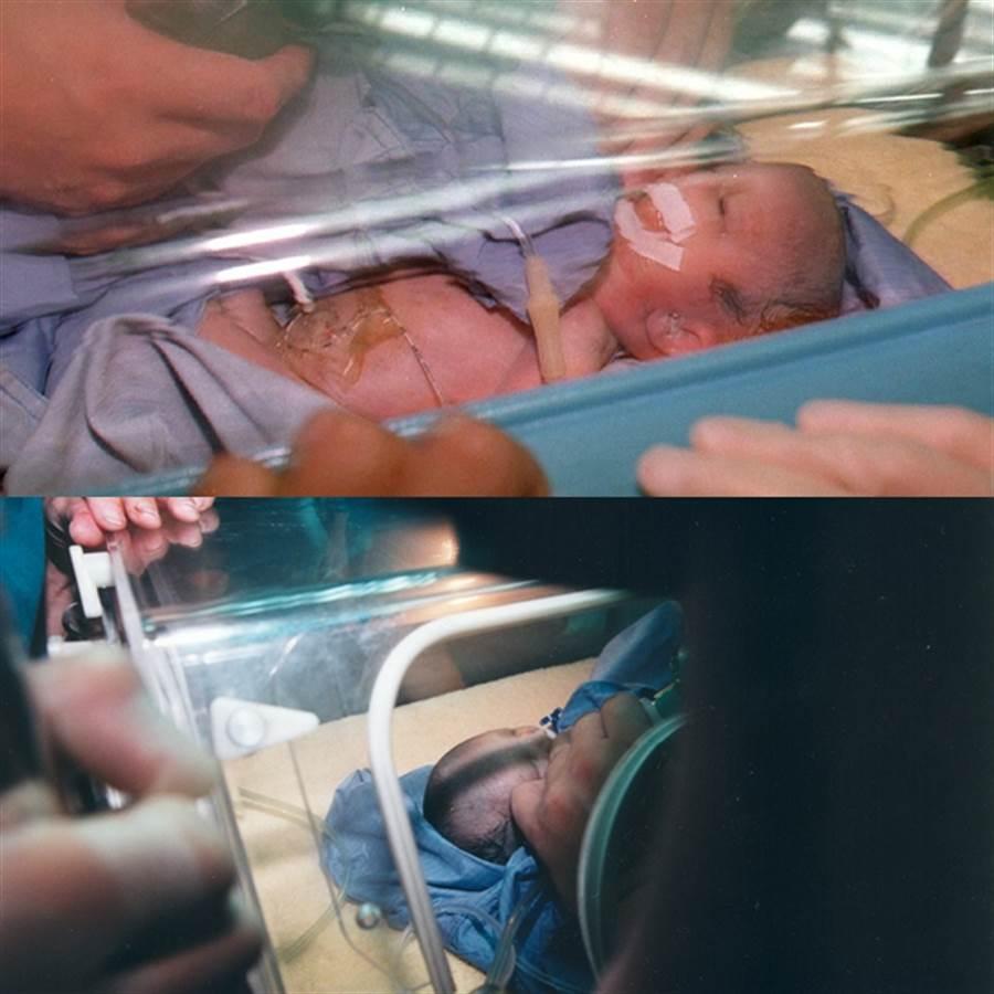 廣三百貨槍擊案受傷孕婦莊嘉慧昨日進行剖腹生產,順利產下一名女嬰,但女嬰狀況不佳(上圖);流彈擊中受傷孕婦莊嘉慧之女兒(下圖)。(中時資料庫)
