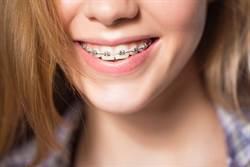 她剛戴牙套問「真的會變瘦嗎」?過來人曝:胖了10公斤