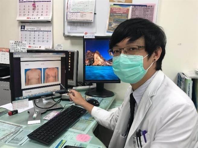 苗栗醫院乳房特別門診醫師雷秋文說明,透過內視鏡微創手術,不僅傷口小,還可讓傷口藏在腋下或側胸。(苗栗醫院提供/何冠嫻苗栗傳真)